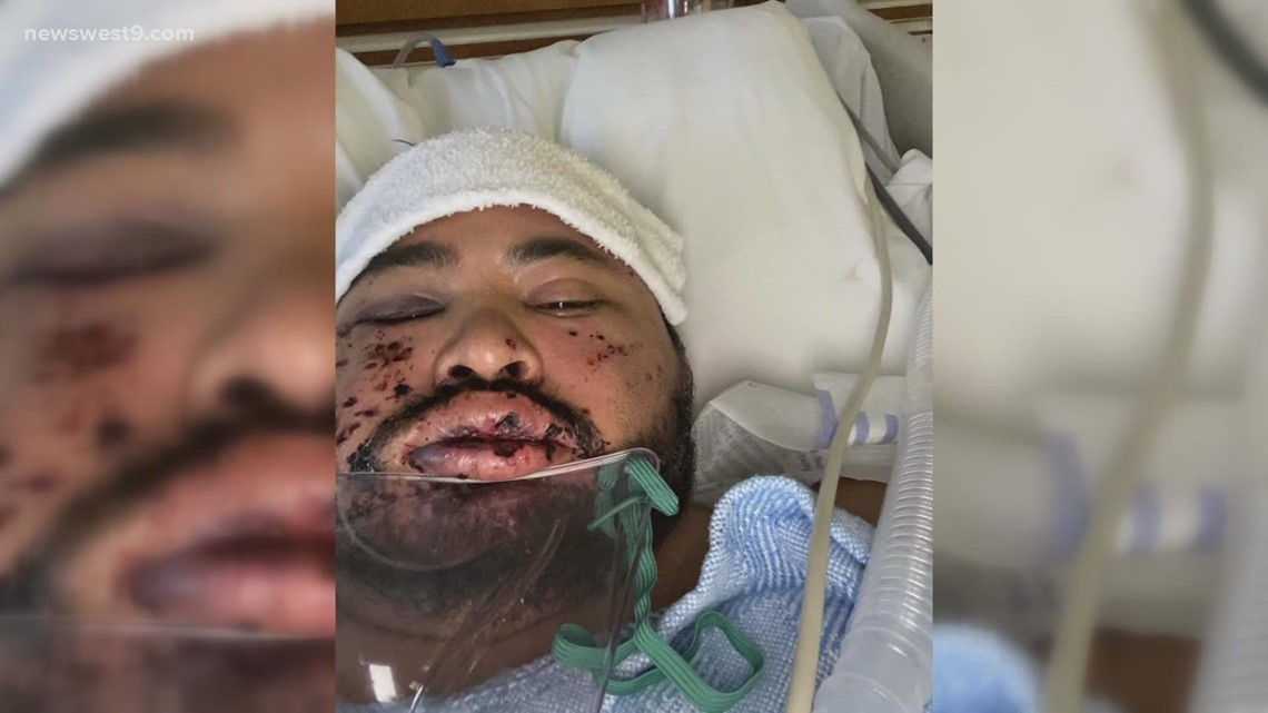 Big Spring man punched and shot in the face in road rage incident
